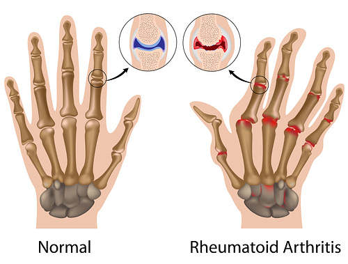 rheumatoid-arthtitis-hand